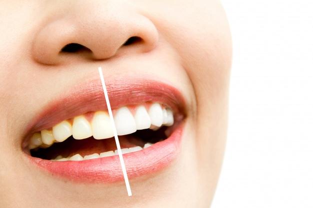Diş Çekilmelerine Dikkat!