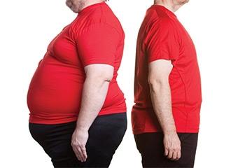 Obezitenin son çaresi ameliyat mıdır